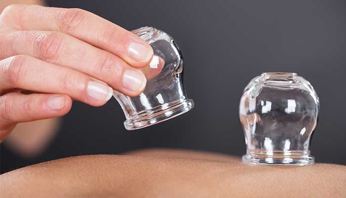What is Flame Cupping?